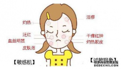 皮肤敏感怎么办?没想到这几个方法竟可