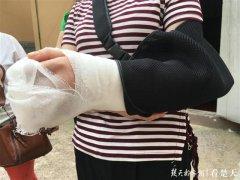 女子乘坐电梯倒地摔成骨折 协商后商场垫